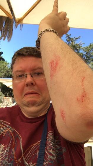 P&O Oceana - Sept 2017 Dubrovnik - Jason injury